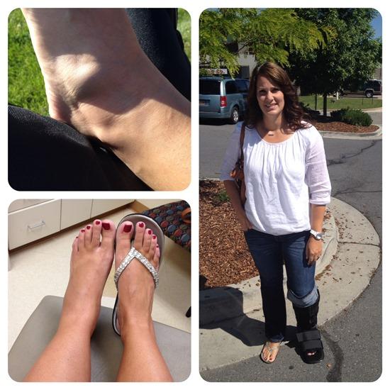 peroneal tendon foot injury